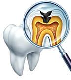 重度虫歯の抜歯回避
