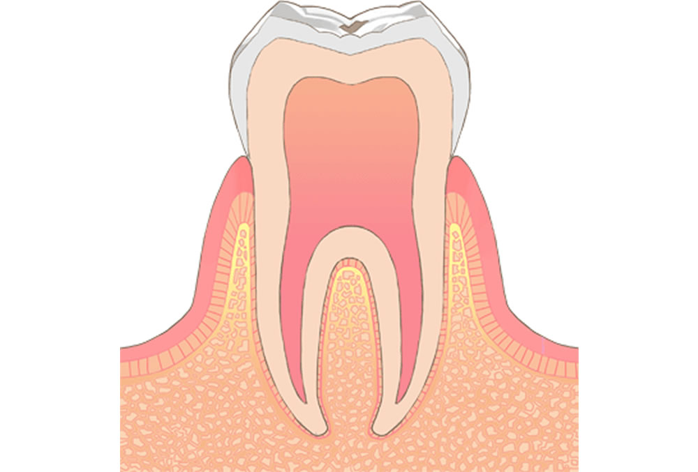 初期段階の虫歯
