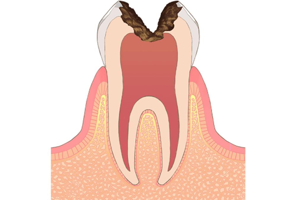 神経(歯髄)まで進行した虫歯