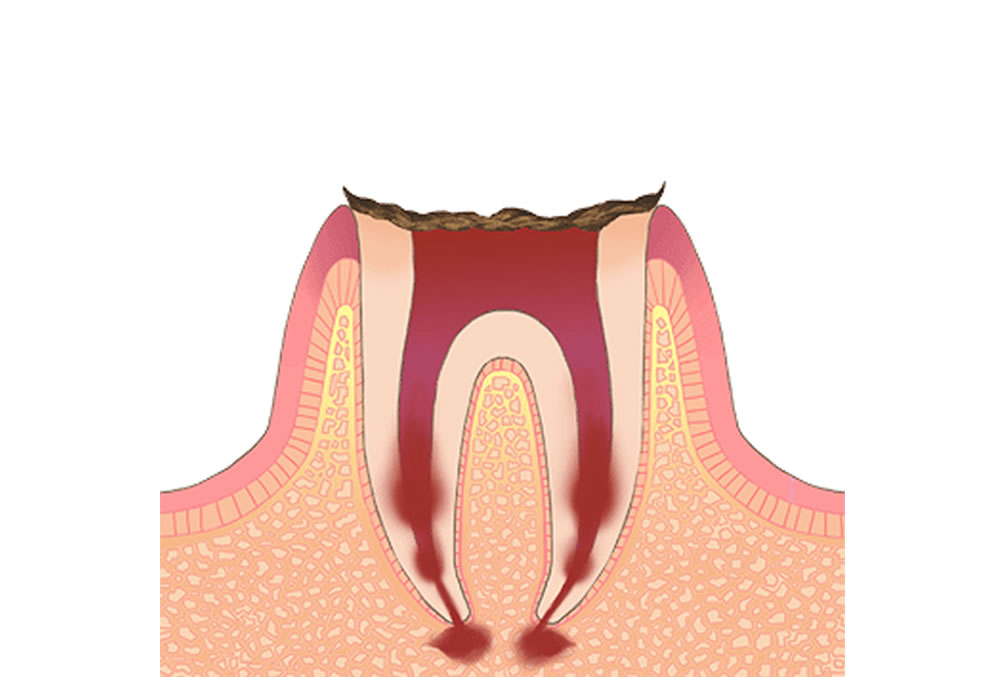 歯根だけが残存している歯