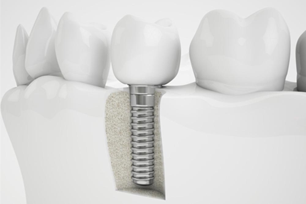 人工の歯の装着