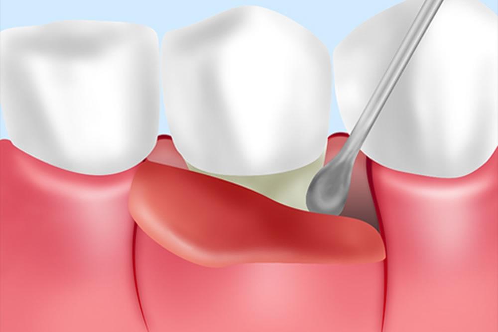 歯周外科治療